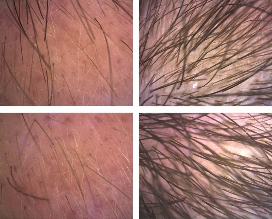 Images cheveux PC35